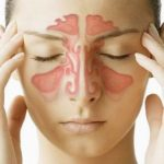 How to clear your blocked sinuses in minutes